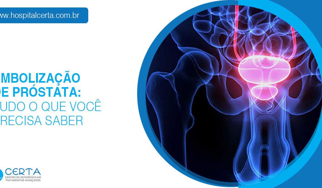 Embolização de próstata: 7 dúvidas do pré ao pós operatório